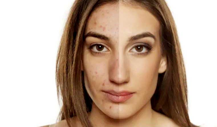 Get Rid of Acne Scars - Beauty Treatments