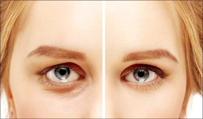 Vanish Dark Circles Under Your Eyes - Beauty Treatments