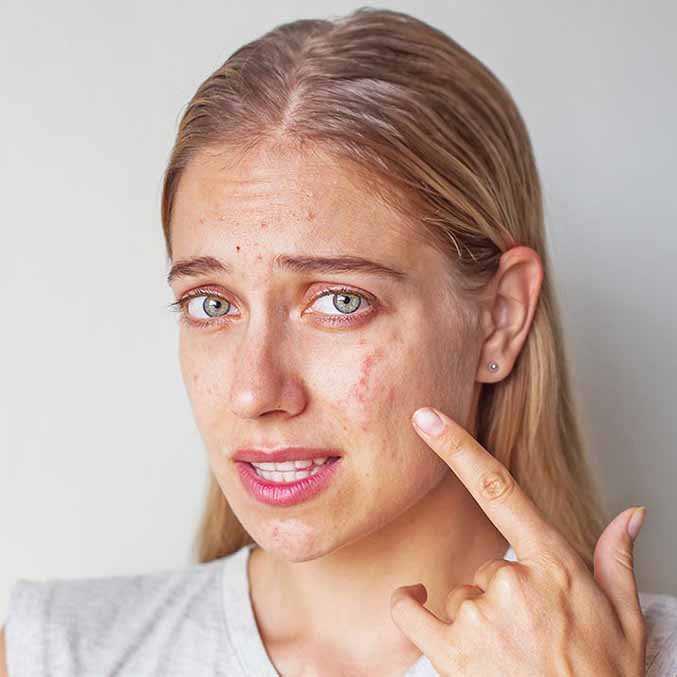 SIMPLE TRICKS TO GET PIMPLES FREE SKIN
