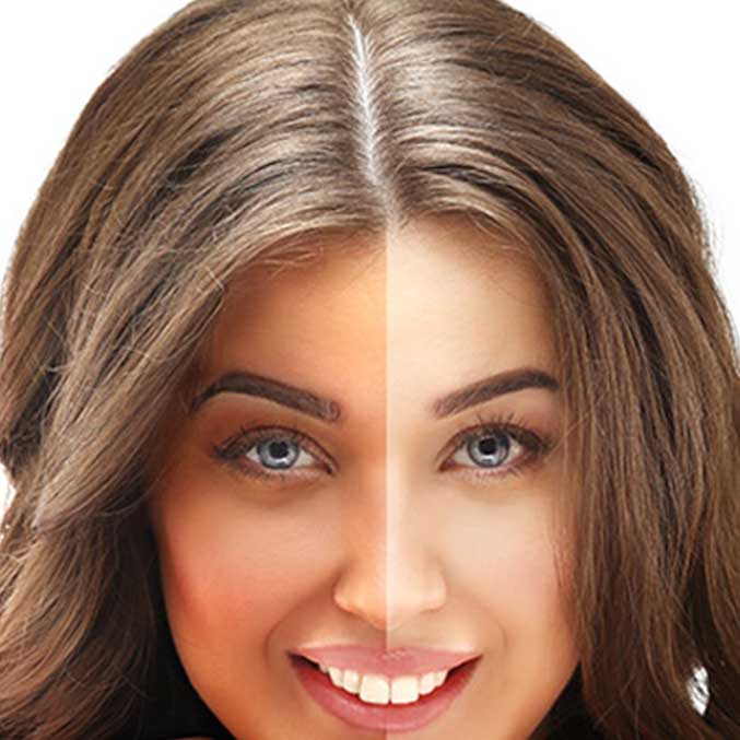 Best Skin Whitening Treatment Pills Without SideEffect