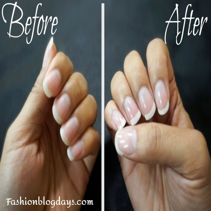 healthy and perfect nails