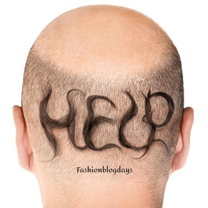 Effective hair transplant guide for men in 2020
